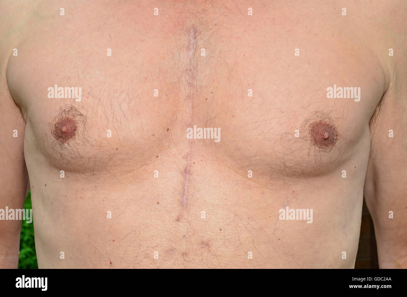 Chest of a man who has undergone open heart surgery 7 months previously,showing how the scars have healed. - Stock Image