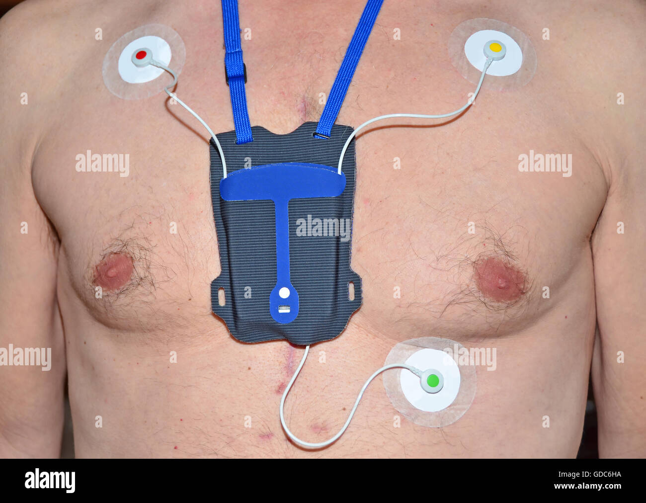 A portable heart monitor (sometimes caller a Holter monitor),with colour coded electrode pads. Worn by a man who - Stock Image