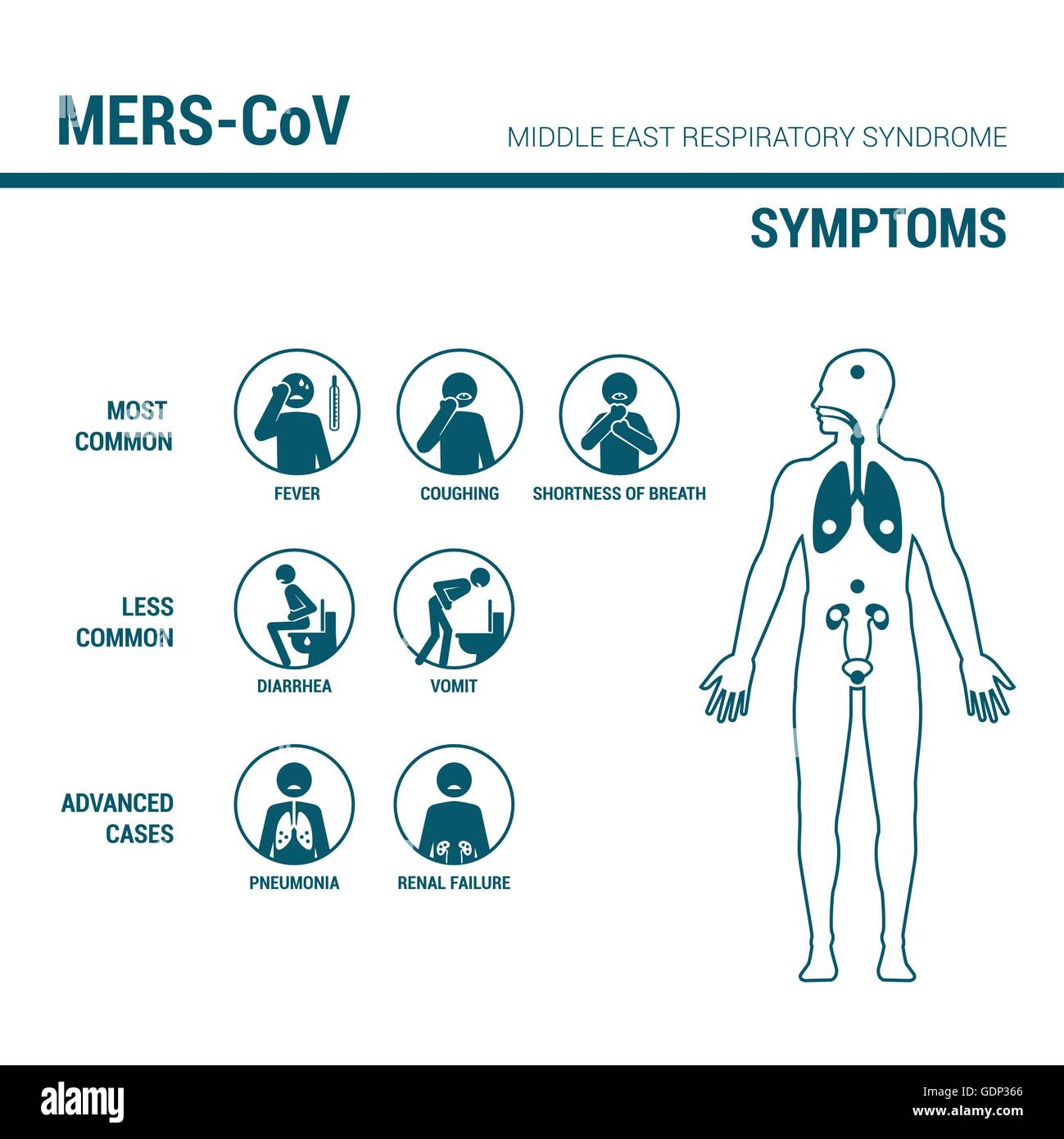 MERS_CoV symptoms medical infographic with stick figures and human body - Stock Image