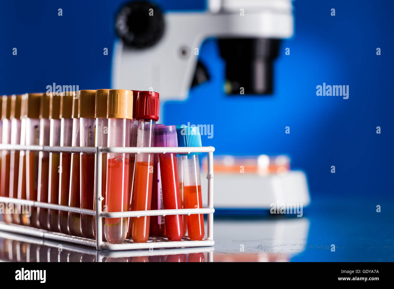 Test tubes with blood samples for testing for the coronavirus - Stock Image