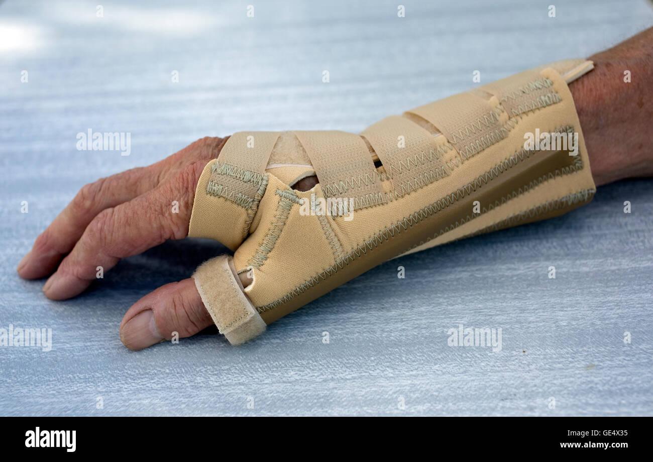 Arthritic hand in Ossur neoprene arthritis wrist thumb brace UK - Stock Image