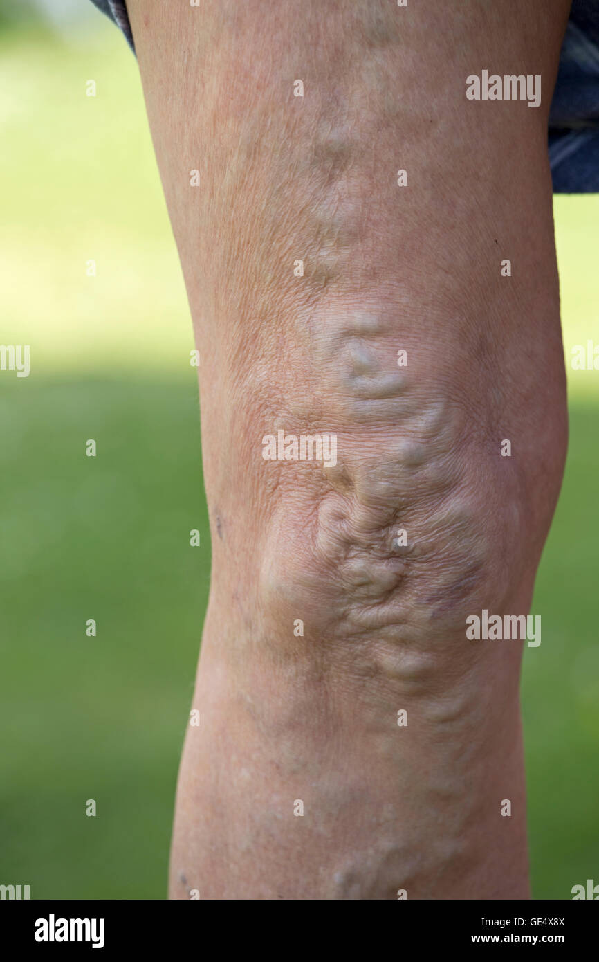 Varicose veins swollend enlarged veins and distorted skin in knees and legs of elderly woman UK - Stock Image