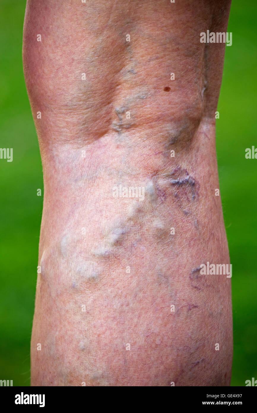 Varicose veins swollend enlarged veins and distorted skin in legs elderly woman UK - Stock Image