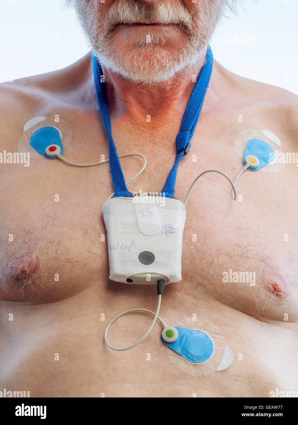Senior man with long-term ECG on his chest, close up - Stock Image