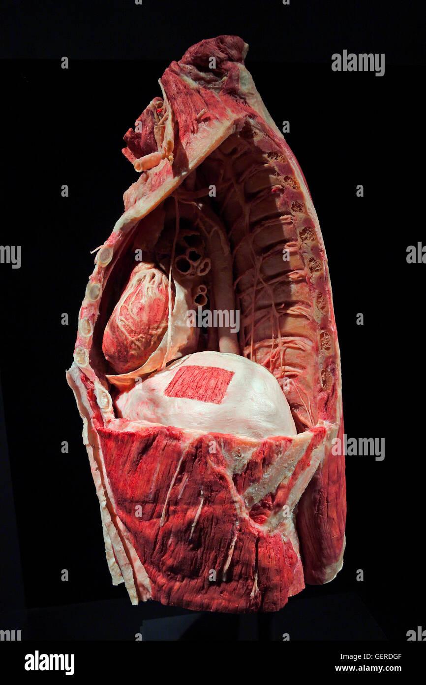 Plastinat, Bauchraum mit Zwerchfell, Dr. Gunter von Hagens, MeMu ...
