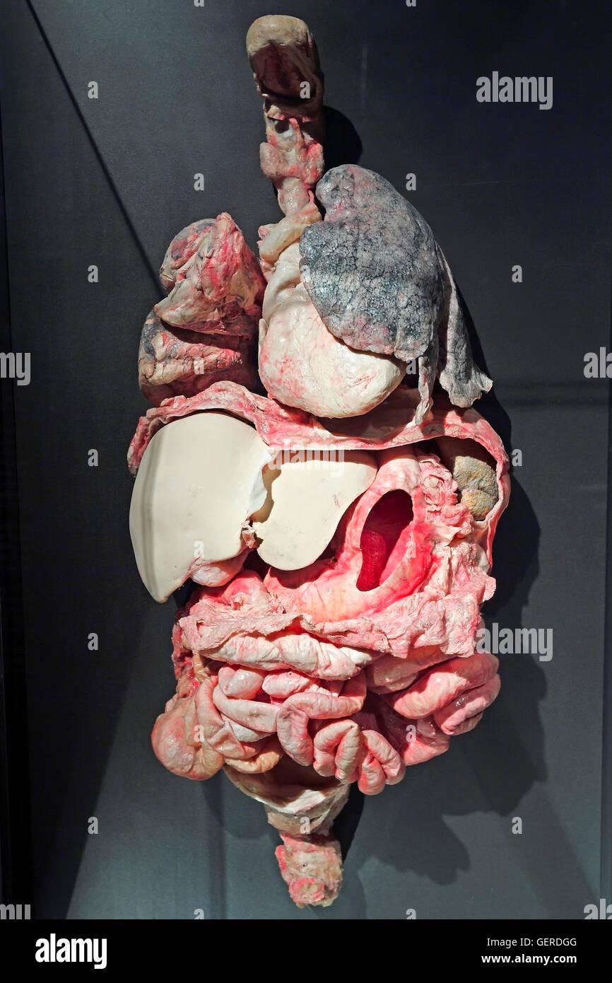 Plastinat, innere Organe mit Raucherlunge, Dr. Gunter von Hagens ...