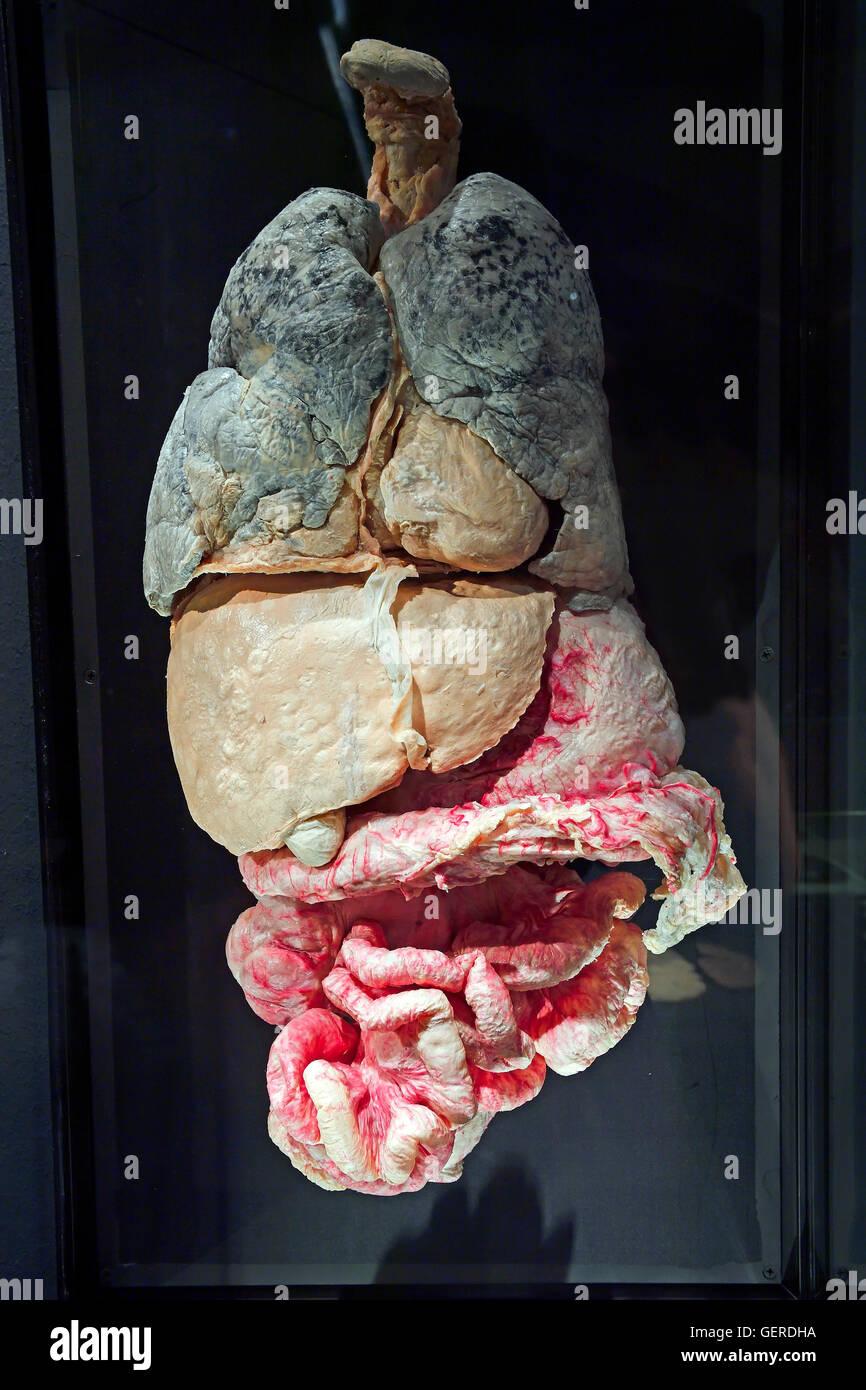 Plastinat, innere Organe mit Metastasen, Dr. Gunter von Hagens, MeMu ...