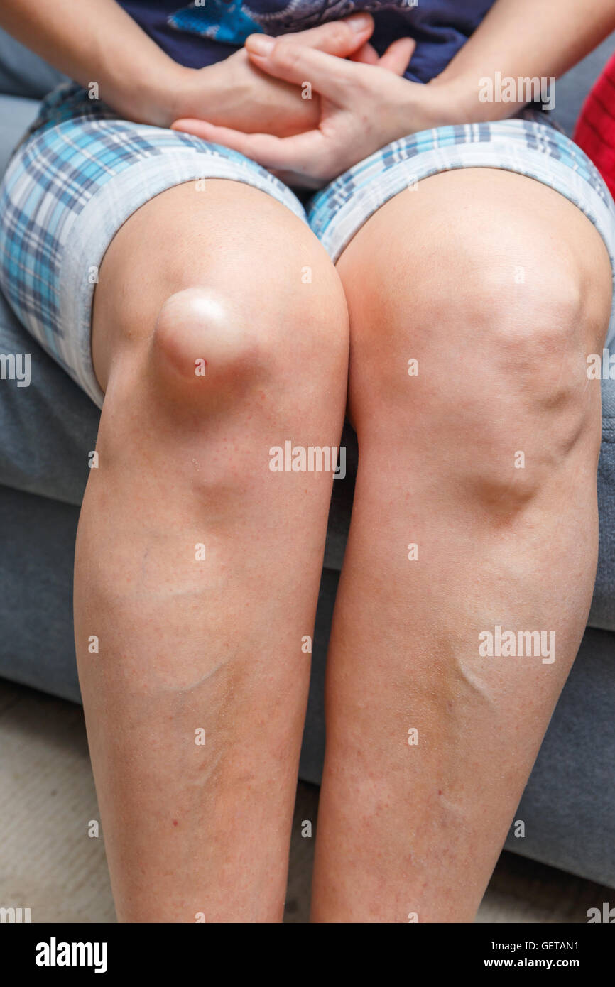 Female injured knee, close up - Stock Image