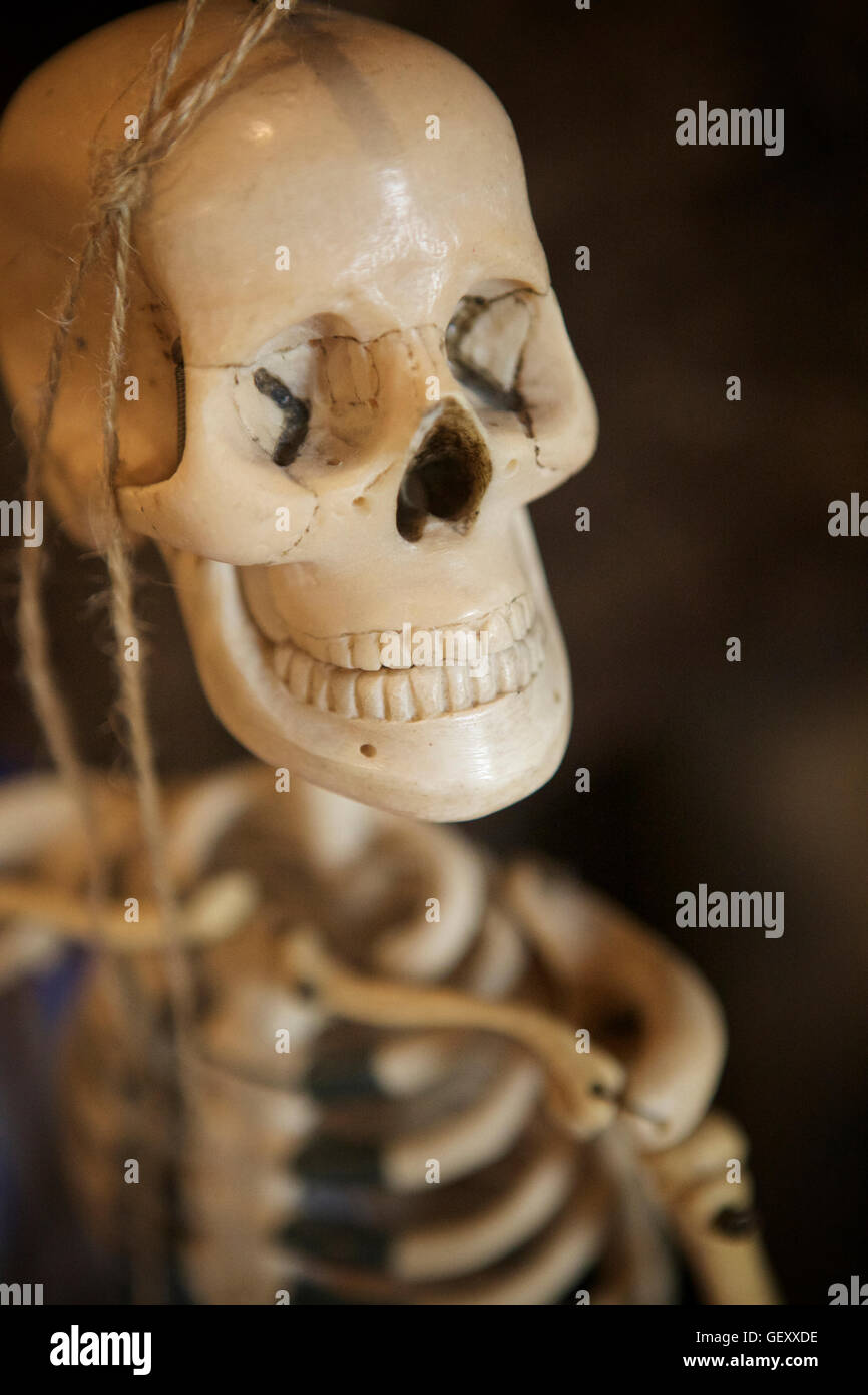 Small skeleton in The old Operating Theatre Museum in London. - Stock Image