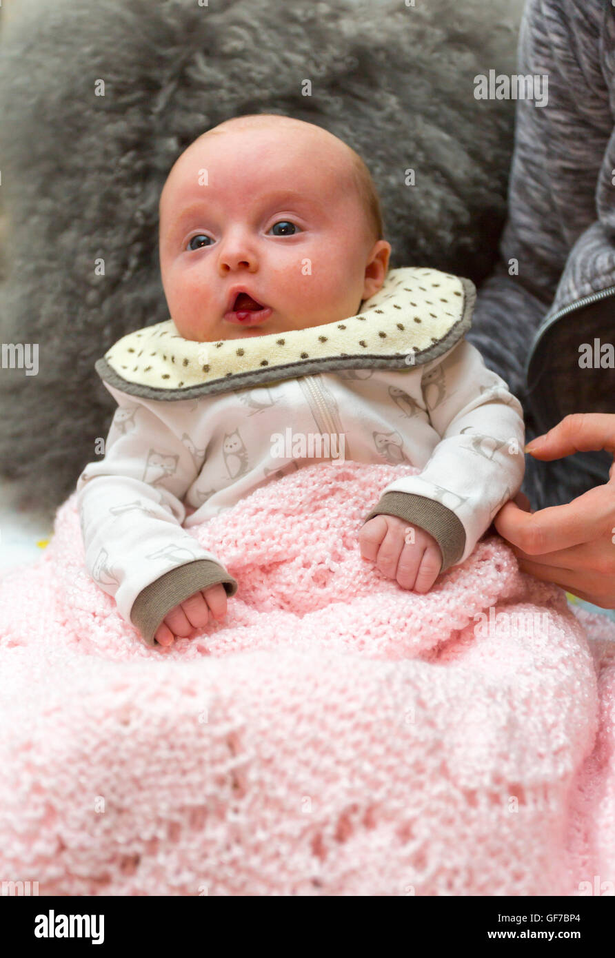 2 month old infant with hemangioma, benign tumor on her lip - Stock Image