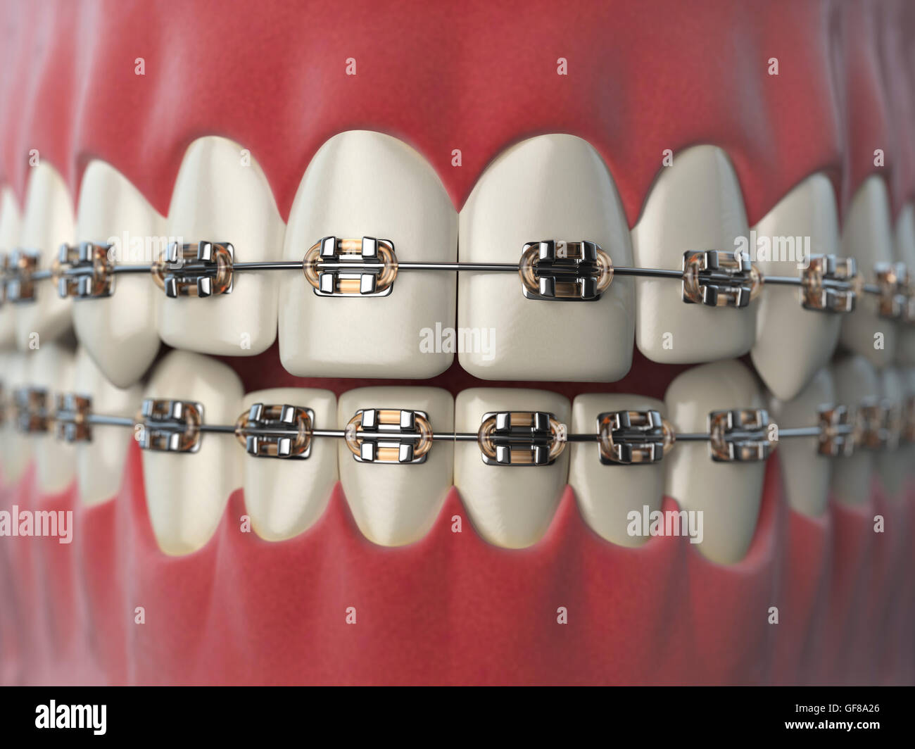 teeth with braces or brackets in open human mouth dental care concept 3d illustration