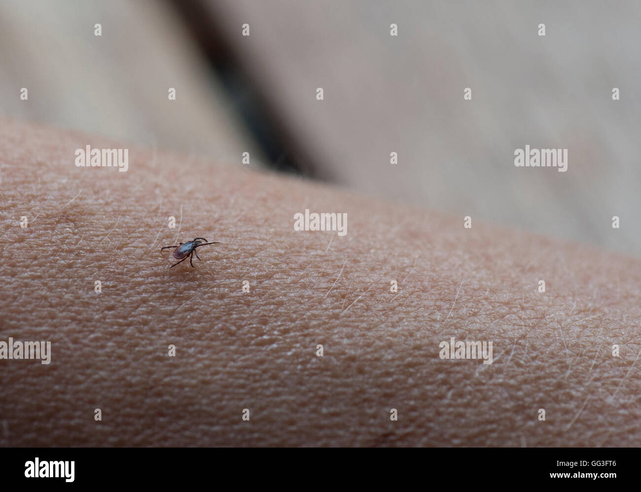 Tick on human arm searching for a place to pierce - Stock Image
