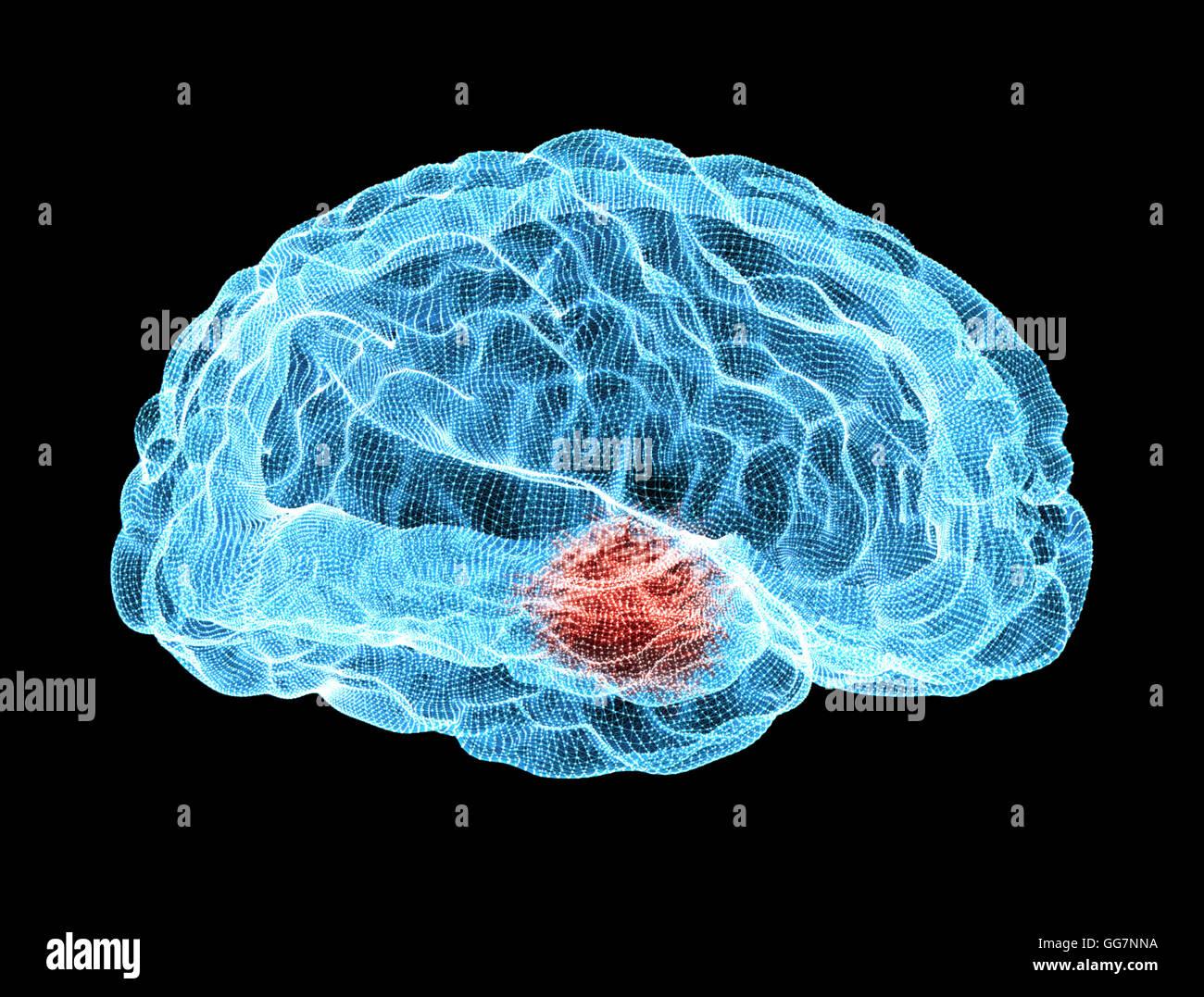 Brain degenerative diseases, Parkinson - Stock Image