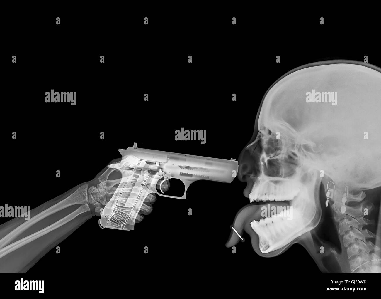 X ray of a hand pointing a handgun at someones head - Stock Image