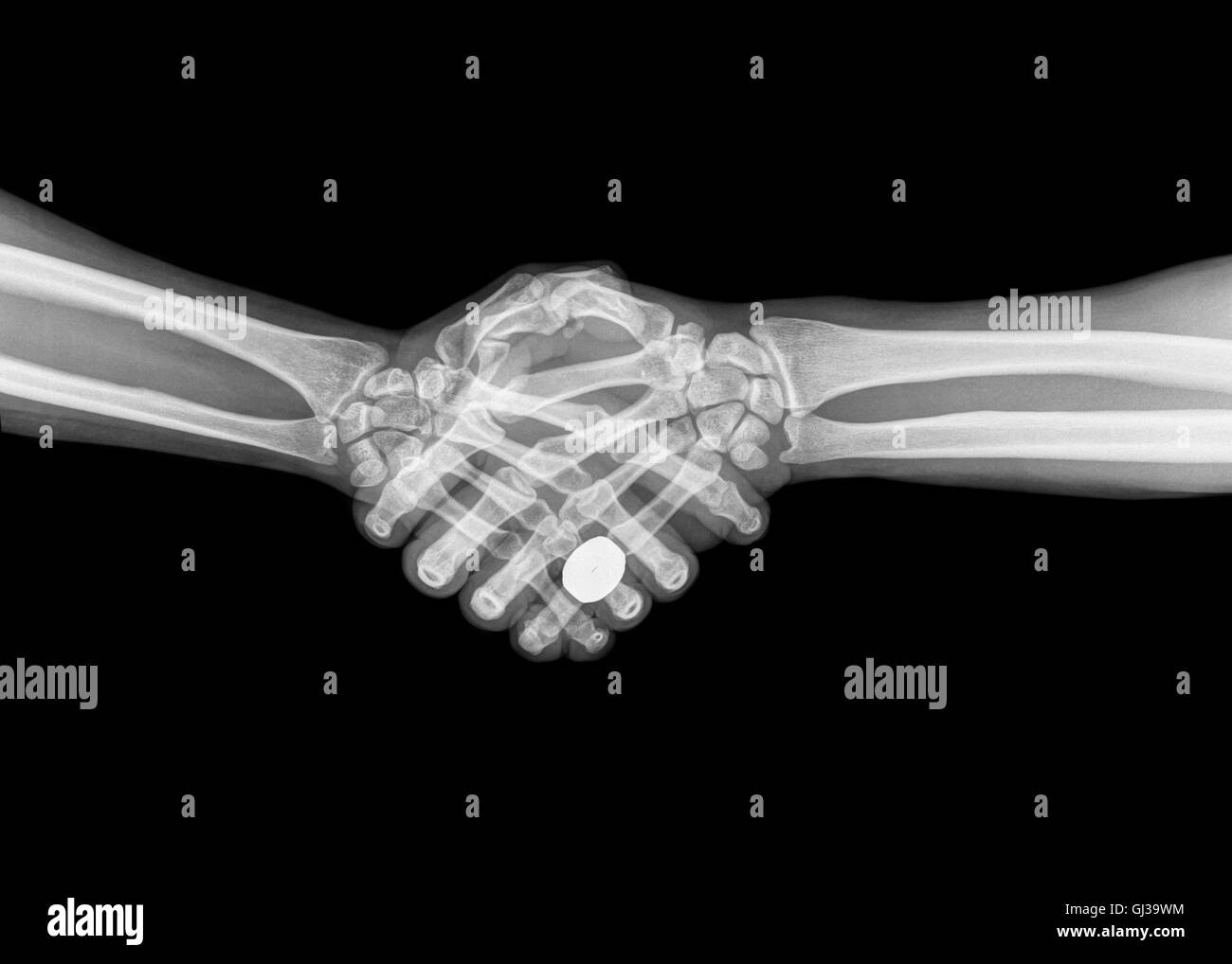 X-ray of two people shaking hands on black background - Stock Image