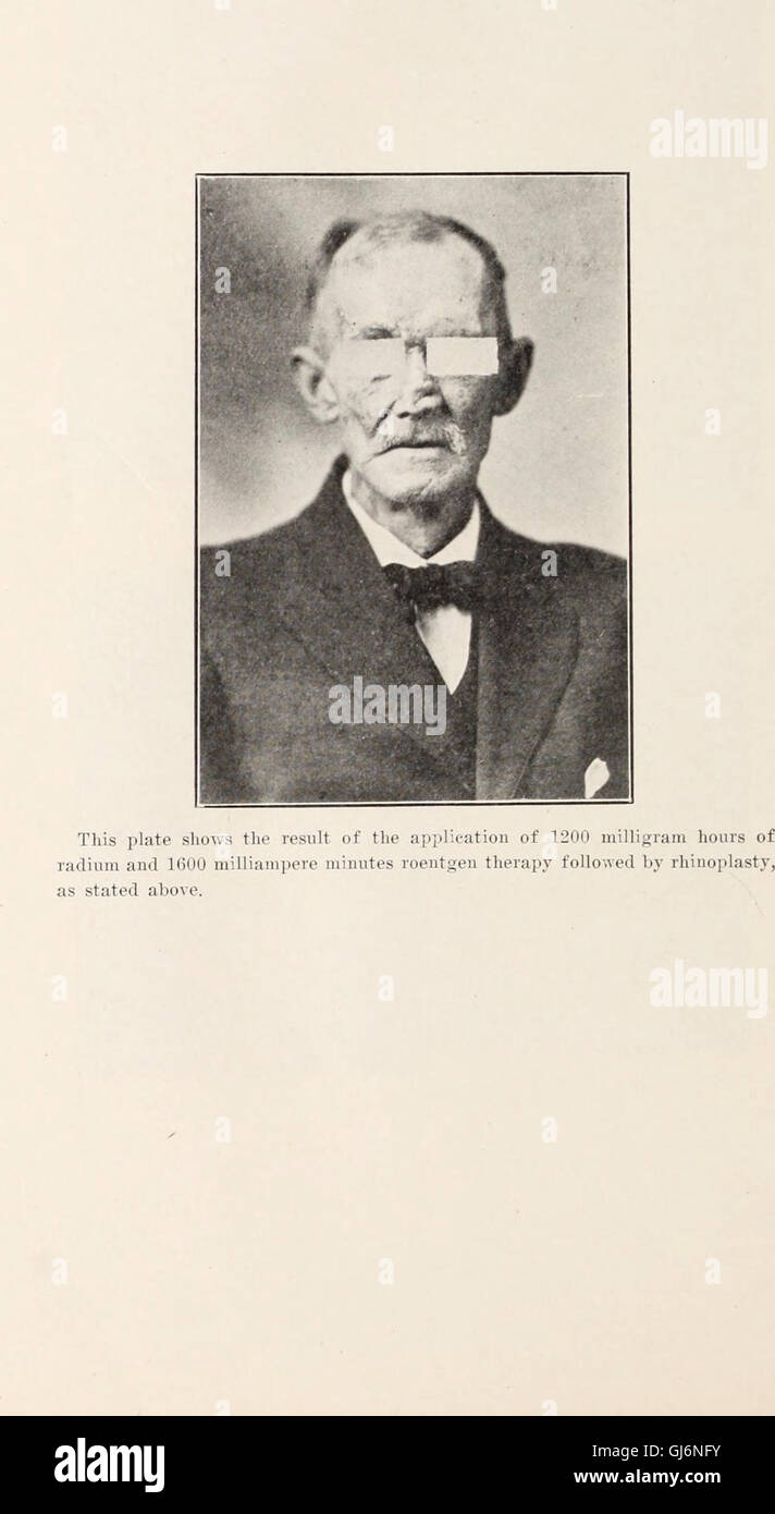 Journal of roentgenology (1918) - Stock Image