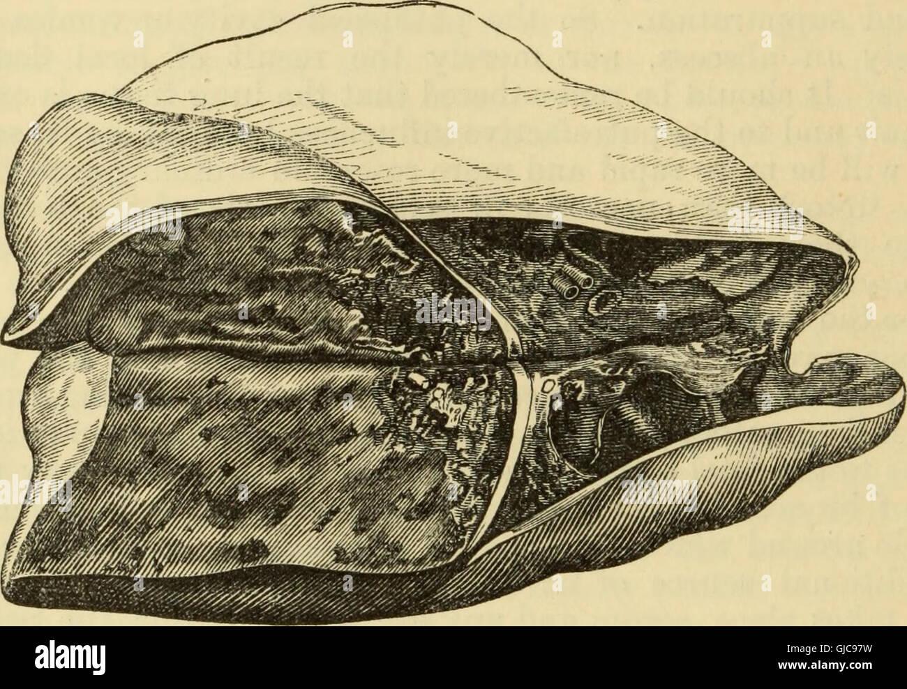 Manual of pathological anatomy (1875) - Stock Image