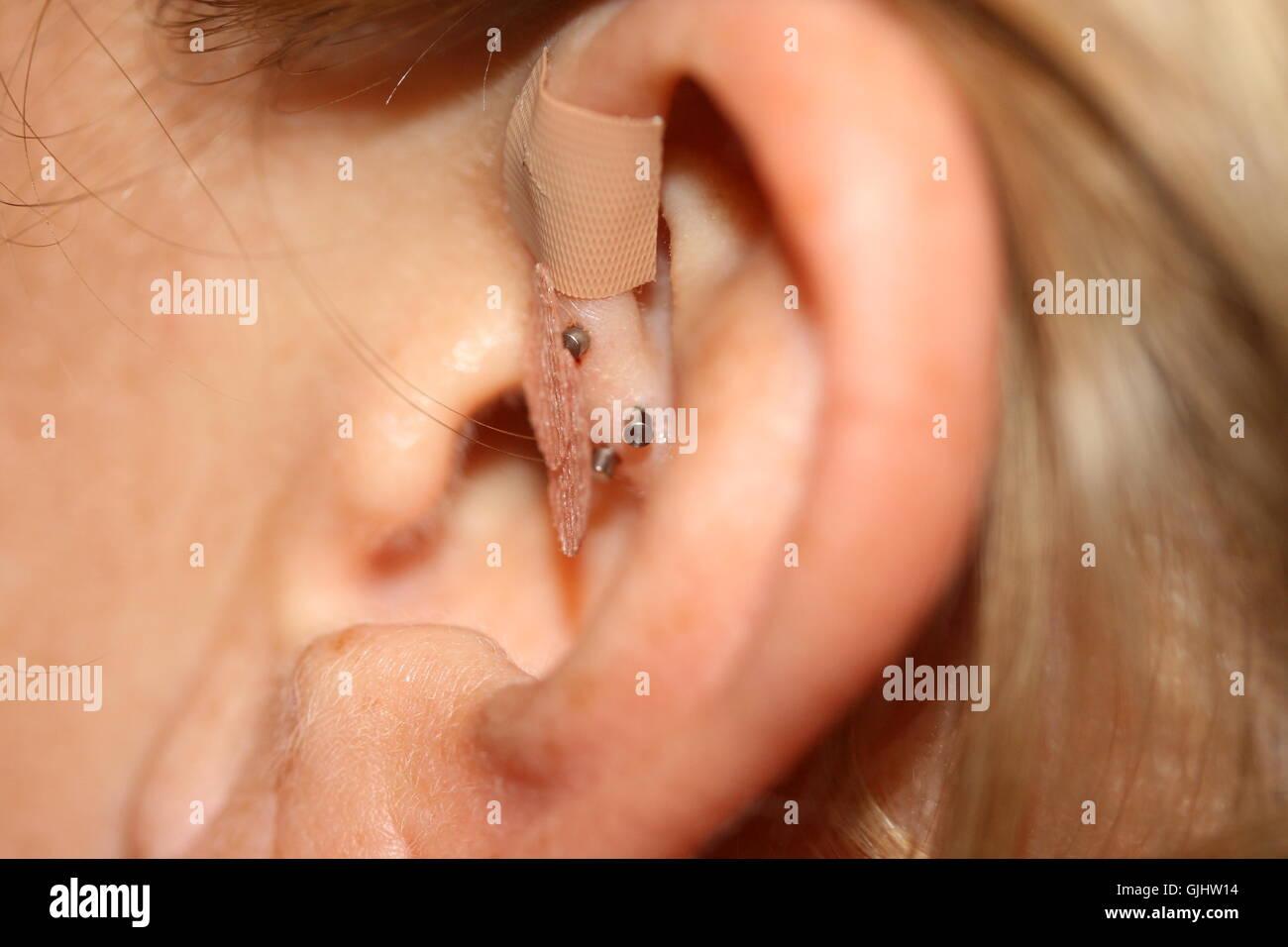 Ear Shell Stock Photos & Ear Shell Stock Images - Alamy