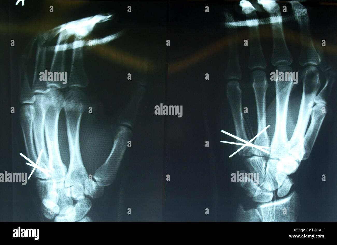 hand radiograph diagnosis - Stock Image