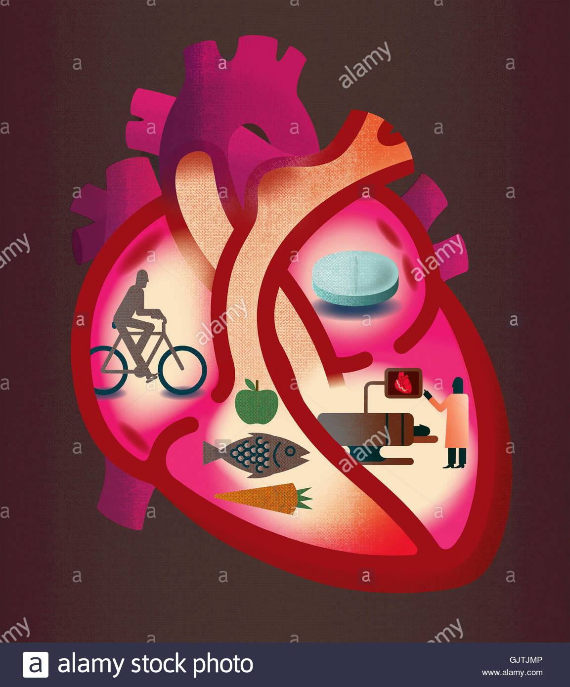 Cross section of heart contrasting heart disease and healthy lifestyle - Stock Image