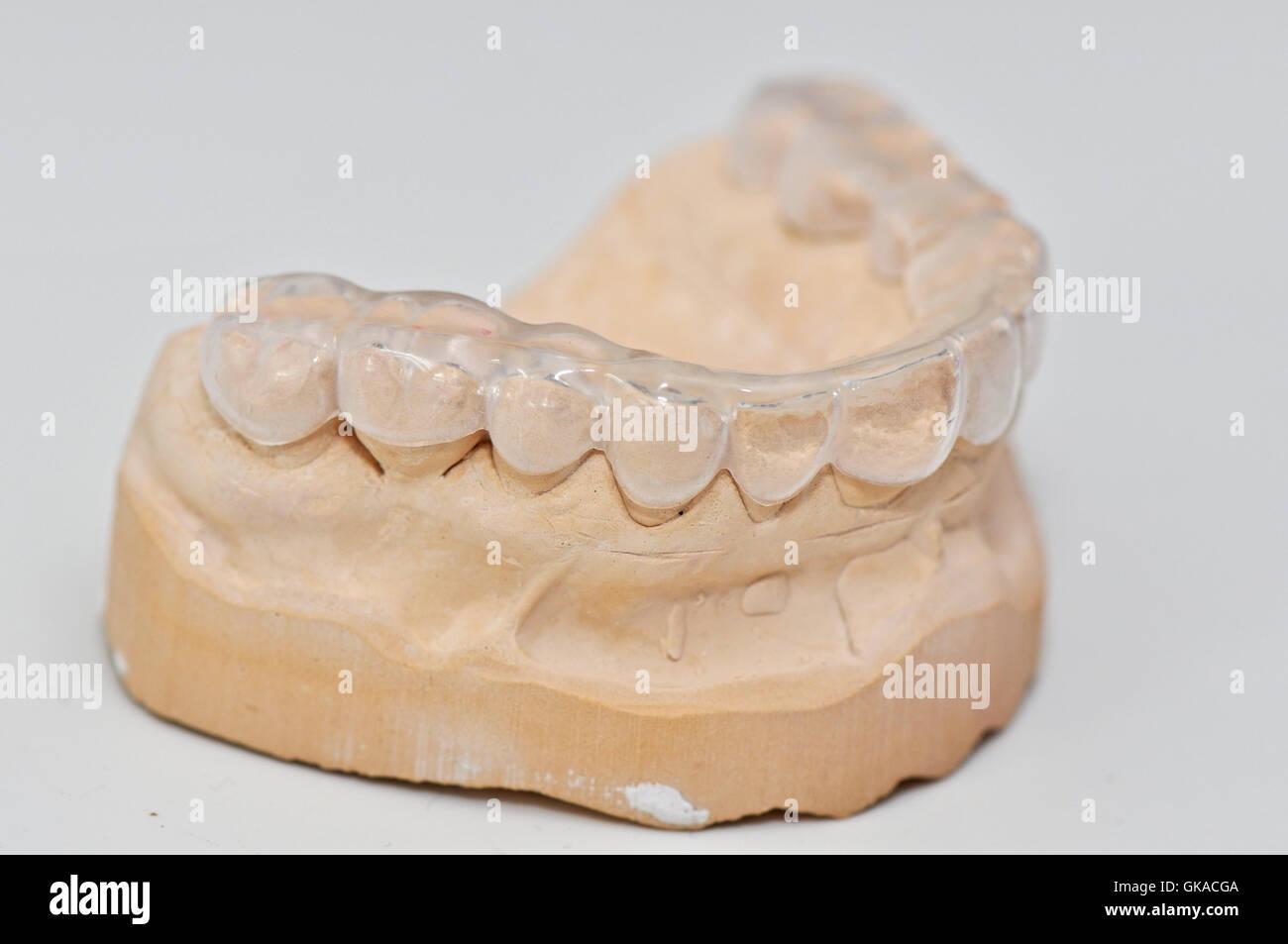 teeth bit plaster stone - Stock Image