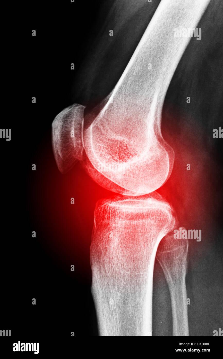 painful knee Stock Photo