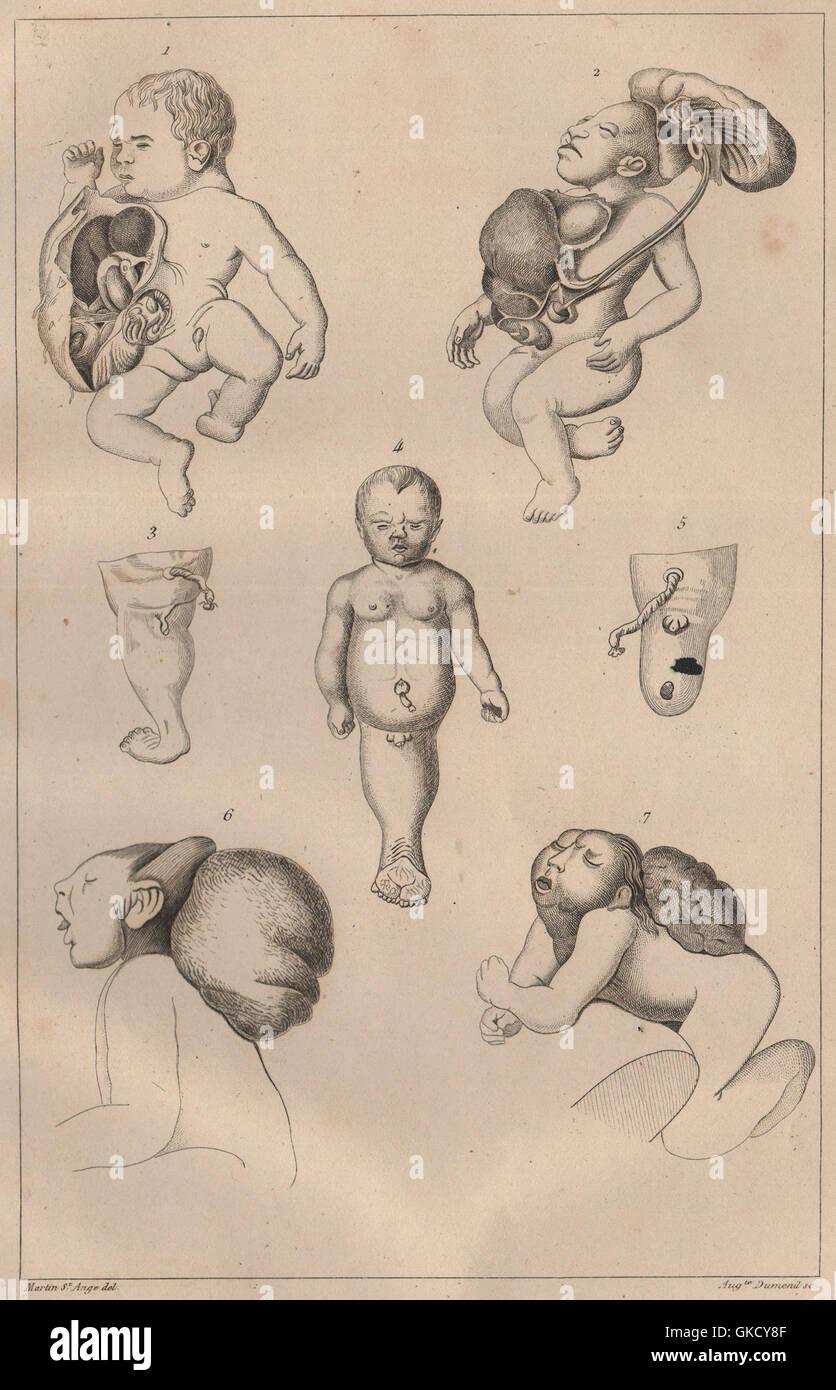 MUTATIONS: 'Monstruosités' Pl. VI, antique print 1834 - Stock Image