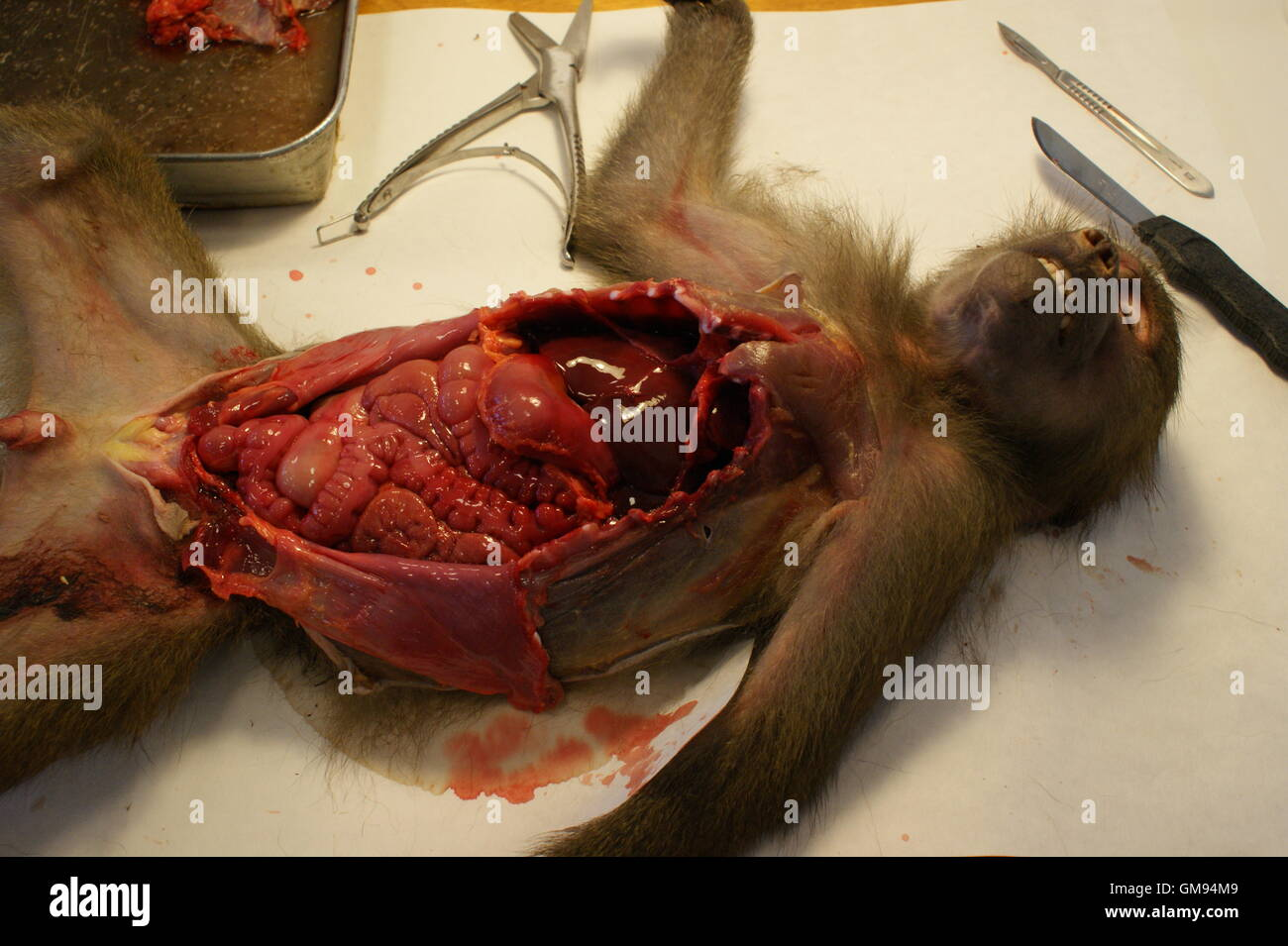 Cadaver Dissection Stock Photos Cadaver Dissection Stock Images