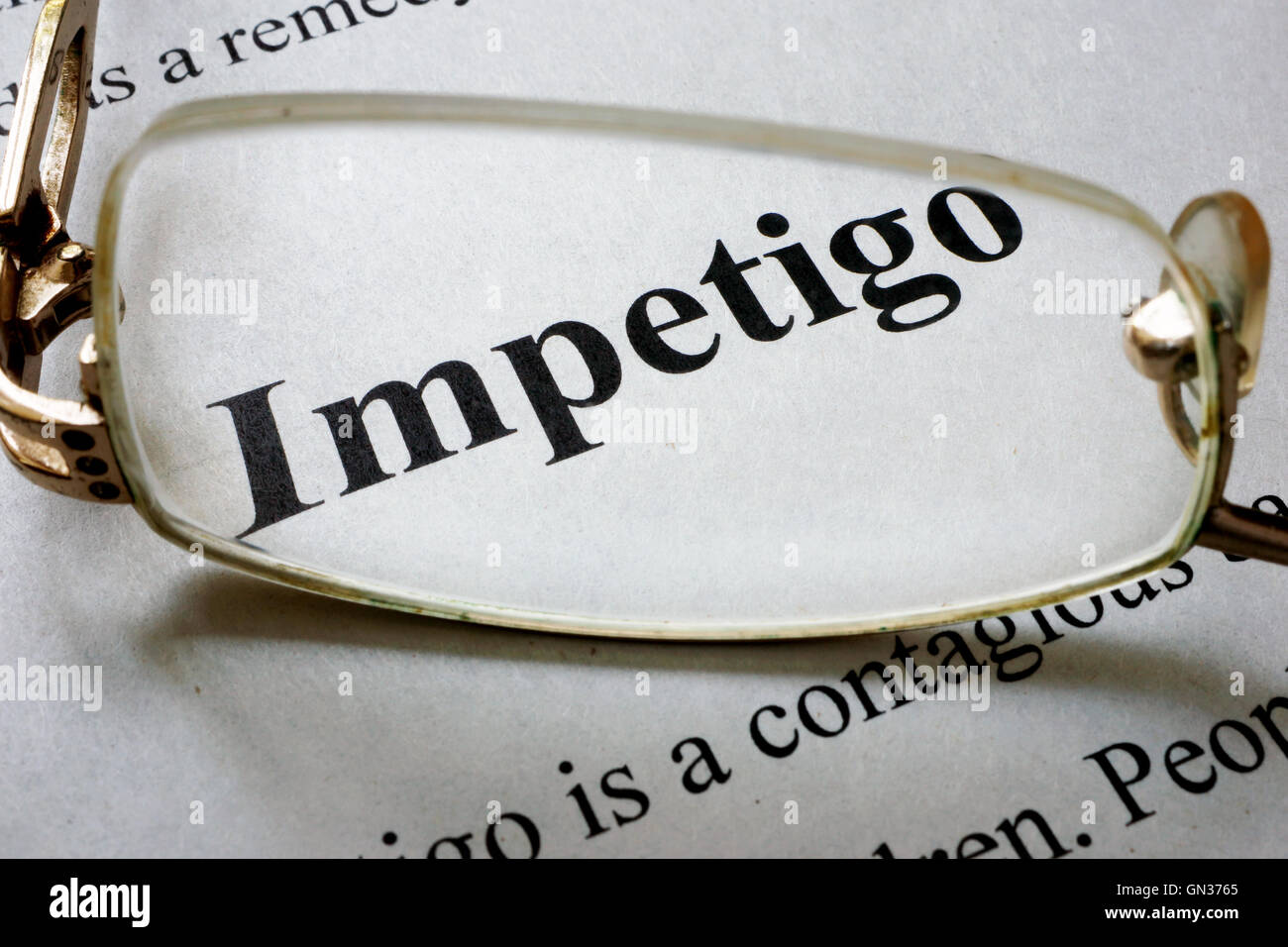 Paper with word Impetigo and glasses. Medical concept. - Stock Image