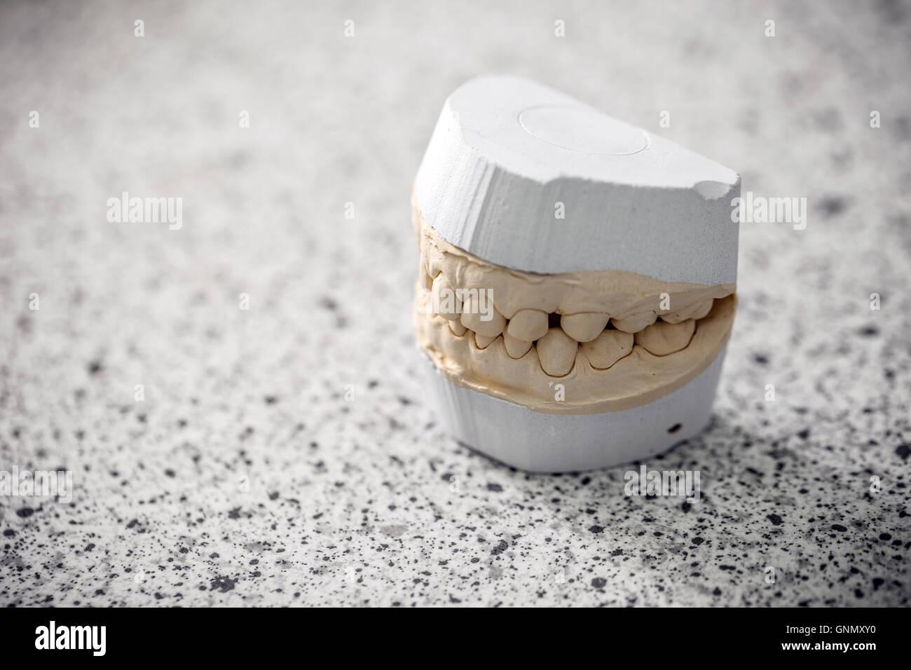 Gypsum model plaster of tooth - Stock Image