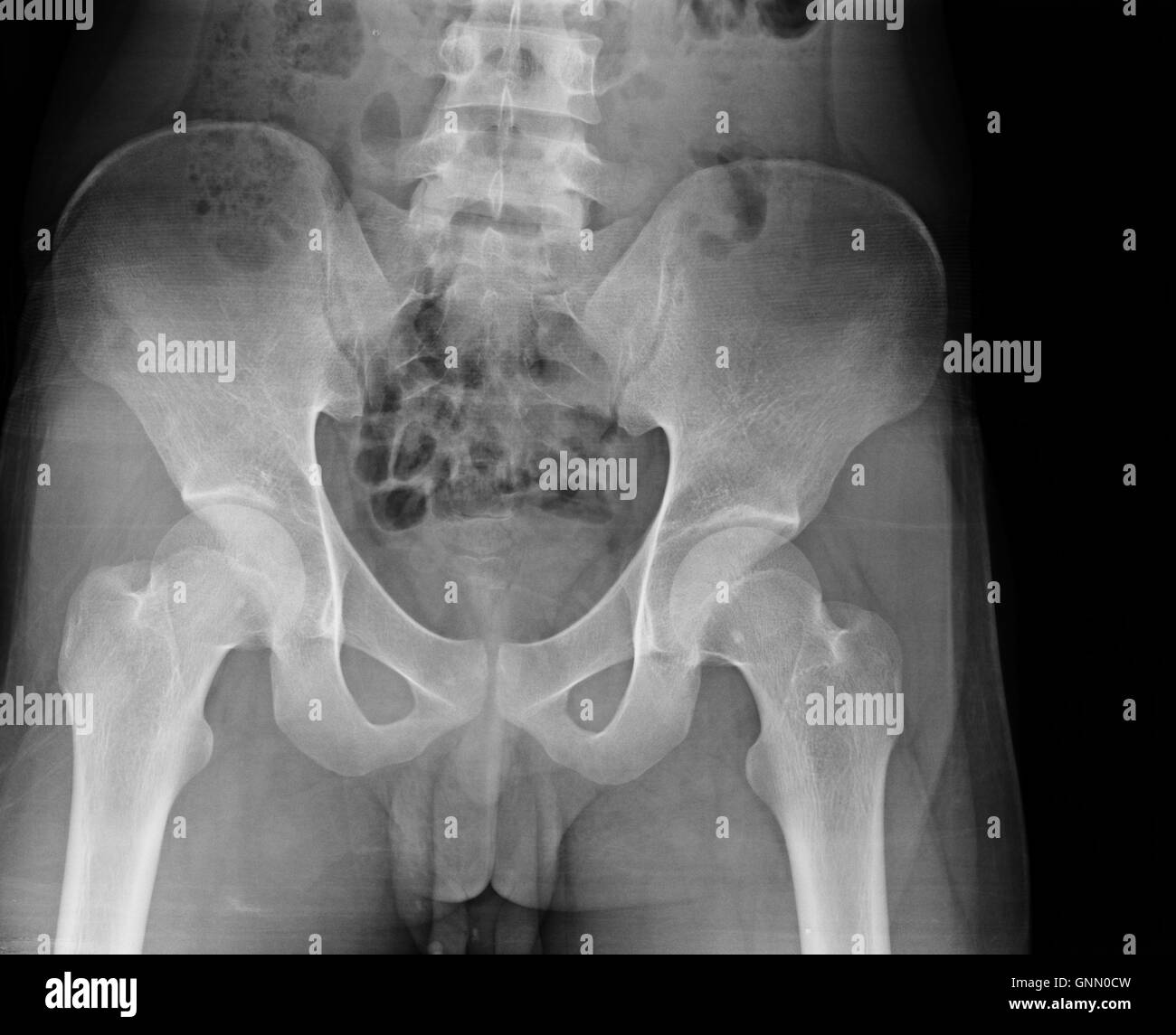 X-ray of the pelvis and spinal column. - Stock Image