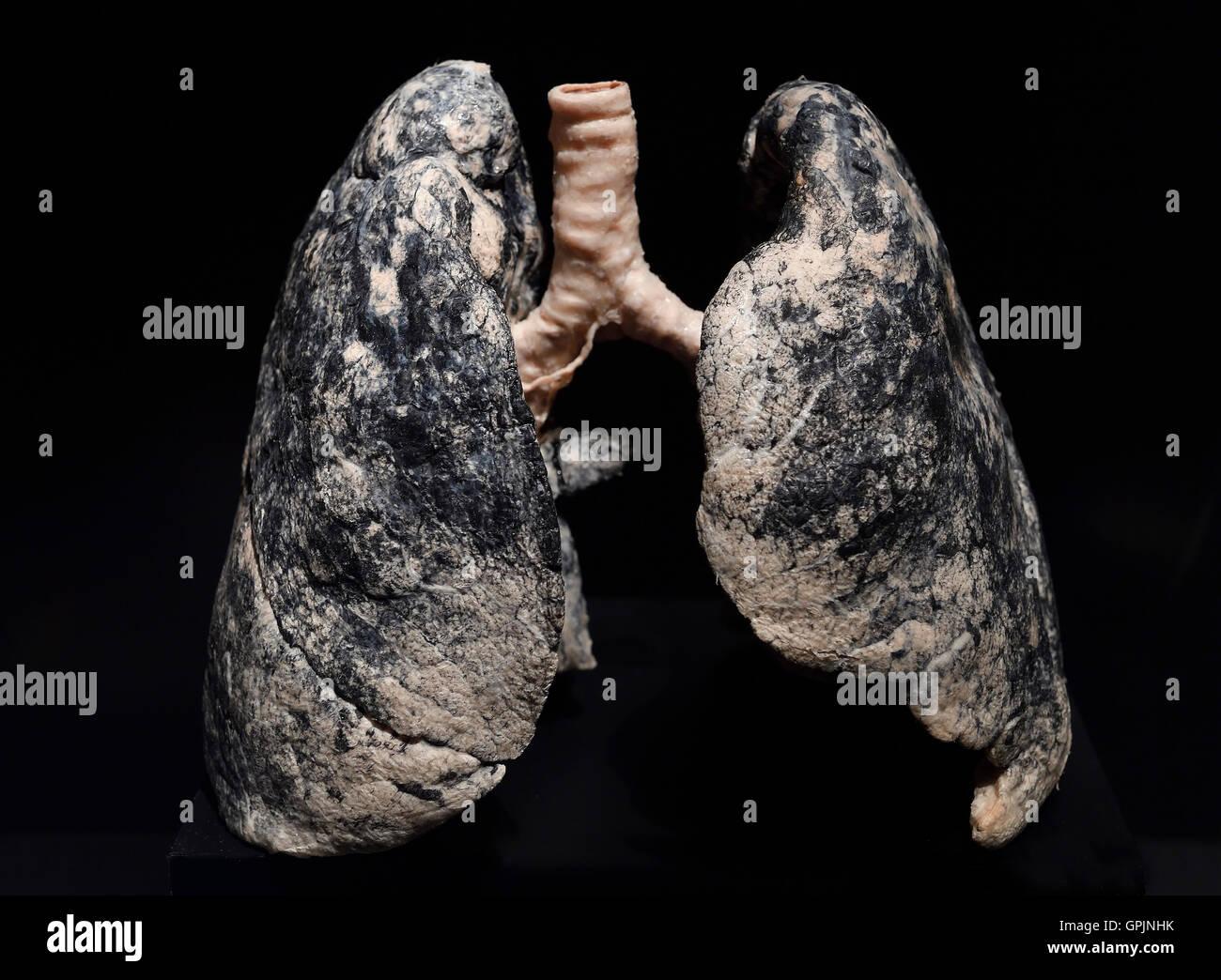 Plastinate, human lung, smoker, Body Worlds, Menschen Museum, Berlin, Germany - Stock Image