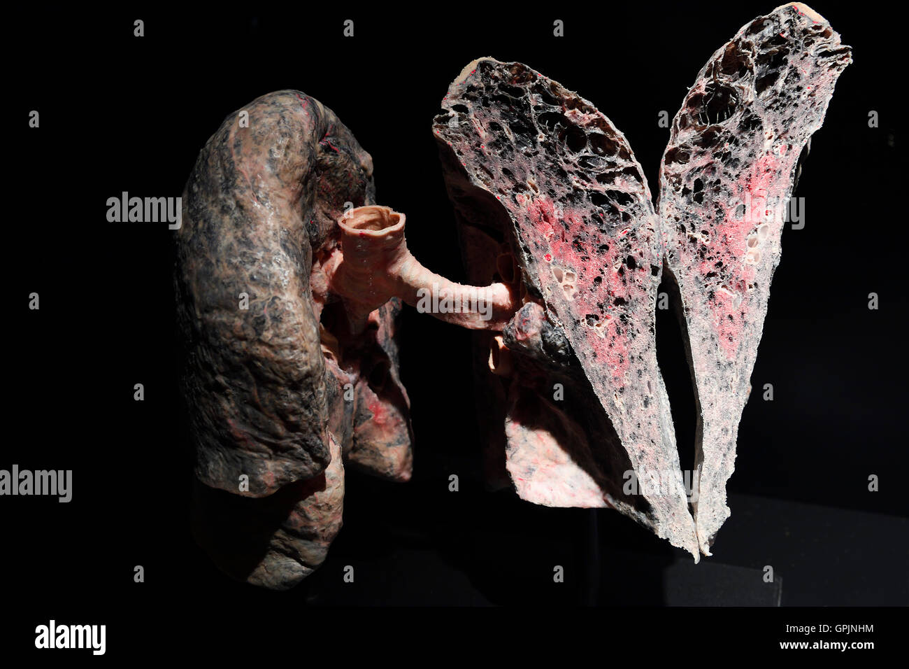 Plastinate, human lung, chronic obstructive pulmonary disease, Body Worlds, Menschen Museum, Berlin, Germany - Stock Image
