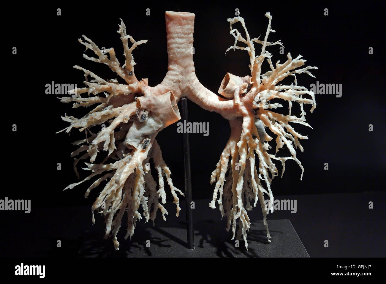 Plastinate, bronchial tree of human lungs, Body Worlds, Menschen Museum, Berlin, Germany - Stock Image