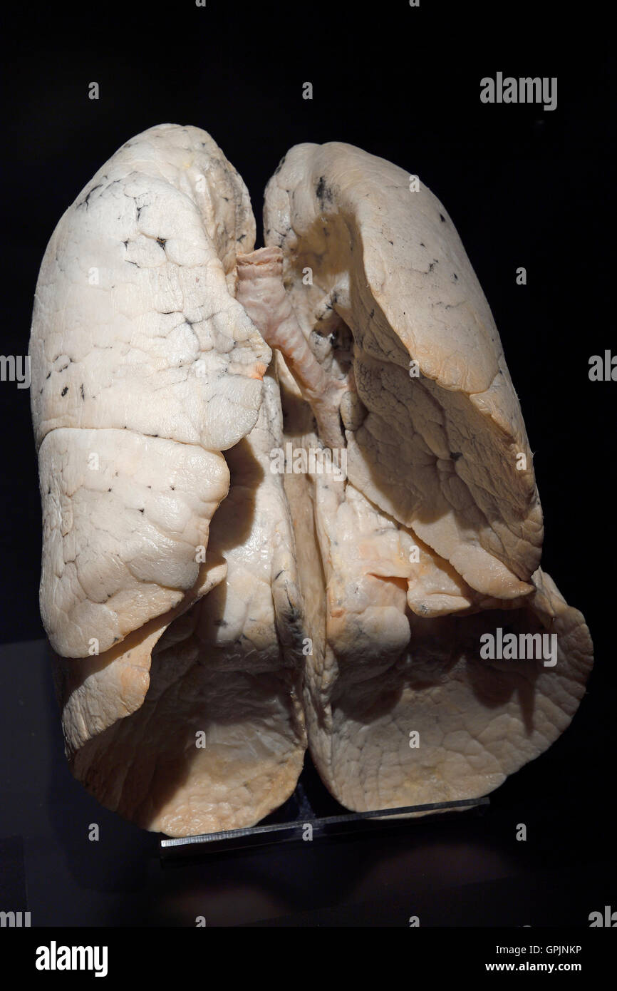 Plastinate, healthy human lung, Body Worlds, Menschen Museum, Berlin, Germany - Stock Image