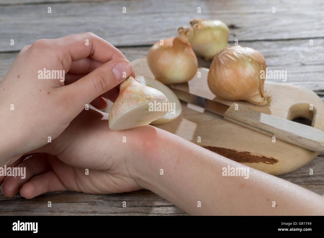 Zwiebel hilft bei Insektenstich, Mückenstich, Mückenstiche, Zwiebelhälfte wird auf die juckende Hautstelle gelegt, Zwiebelauflag Stock Photo