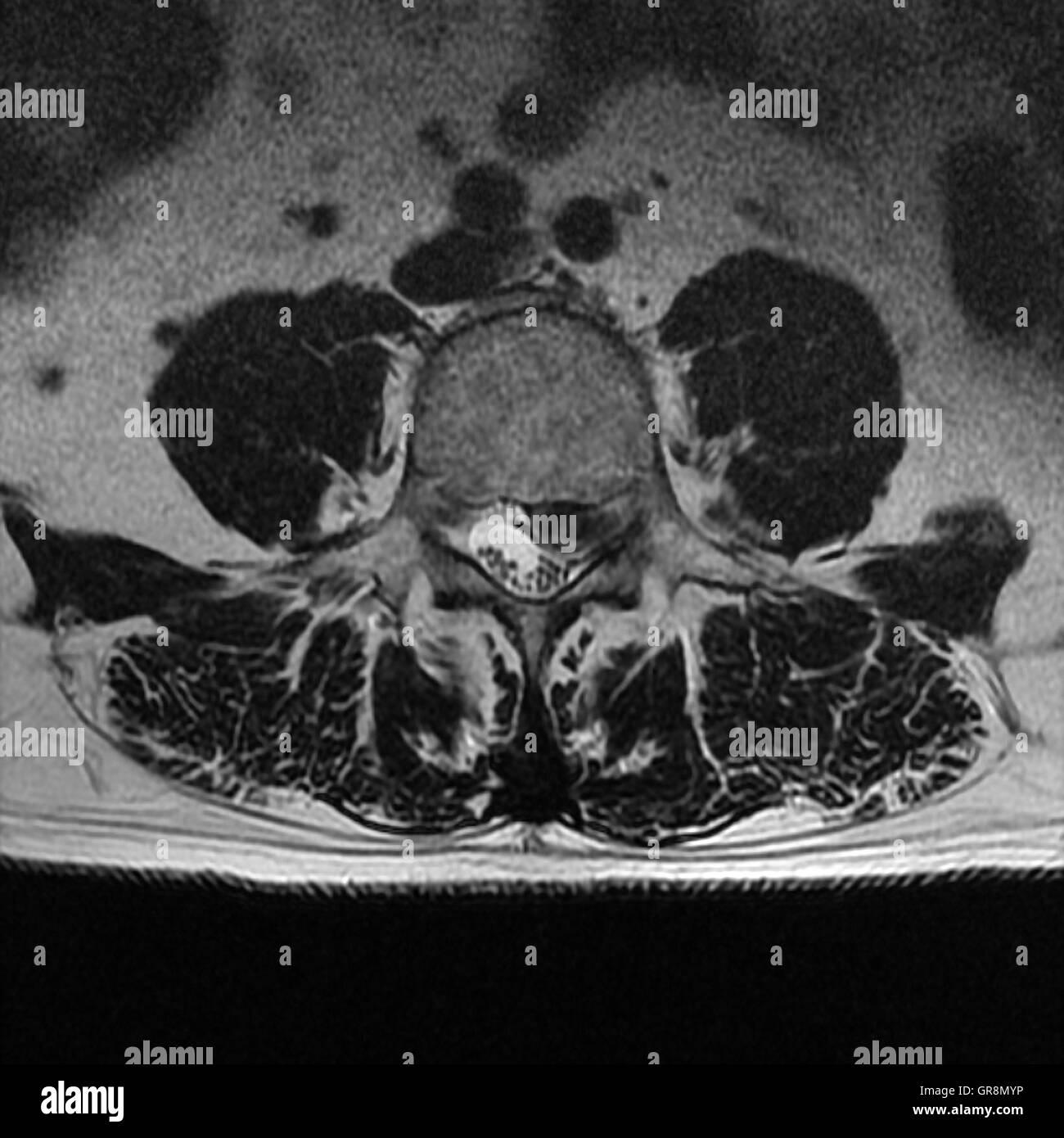 Disk Herniation Lumbar Spine Stock Photos & Disk Herniation Lumbar ...
