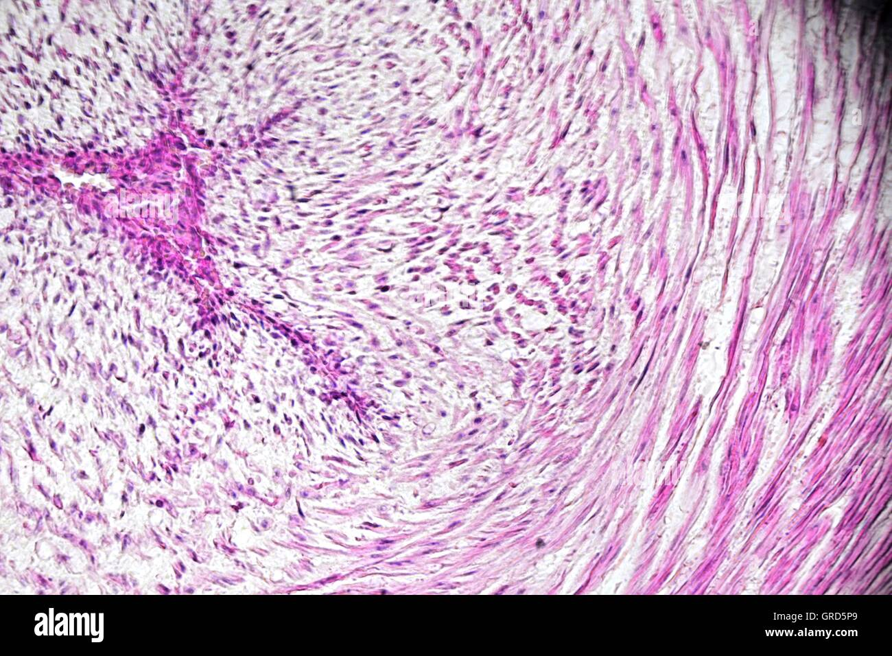 Microscopic Picture Of Human Umbilical Vein - Stock Image