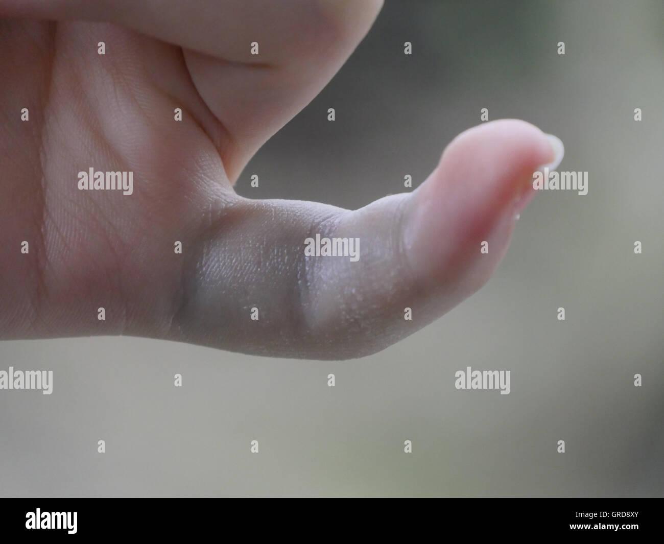 Sprained Pinky, Bruising - Stock Image
