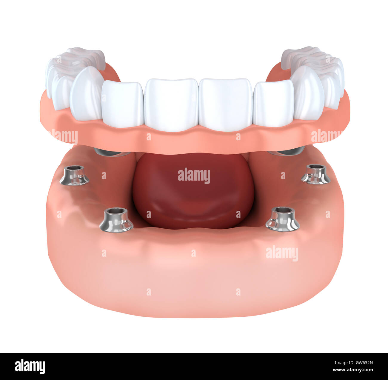 Tooth humman implantation, denture (done in 3d rendering) - Stock Image