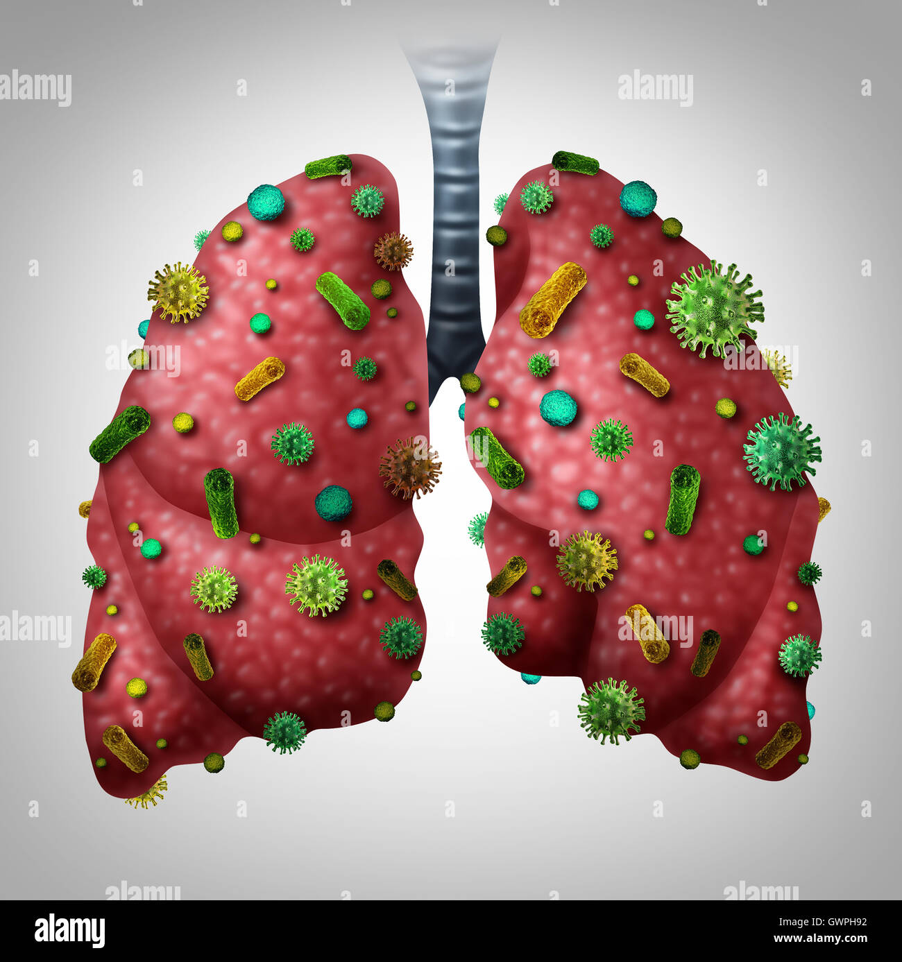 Pneumonia infection medical concept as human lungs infected by virus and bacteria as a lung disease diagnosis with - Stock Image