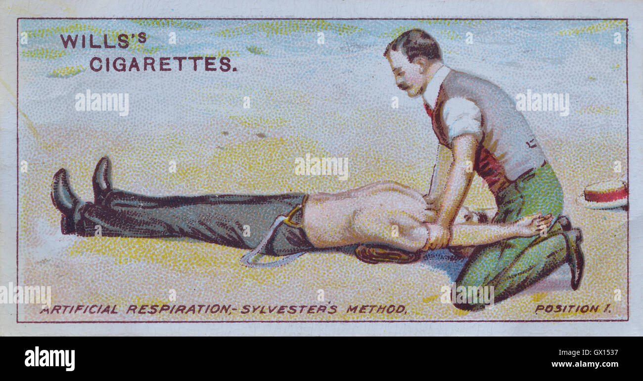 Will's cigarette card of artificial respiration. The Sylvester's method - Stock Image