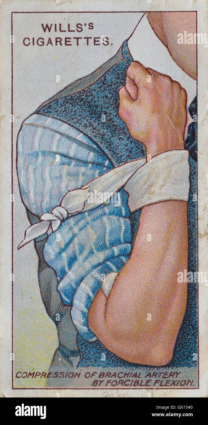 Will's cigarette card of compression of the artery - Stock Image