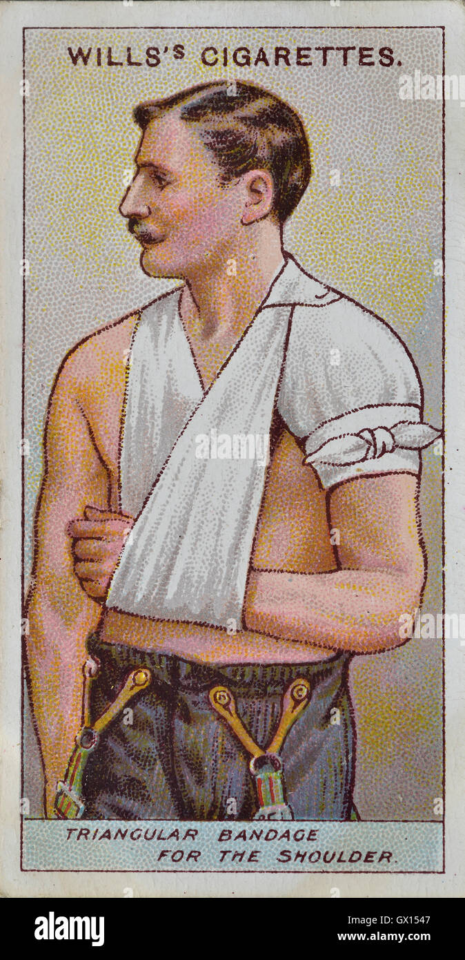 Will's cigarette card of a triangular bandage for the shoulder - Stock Image