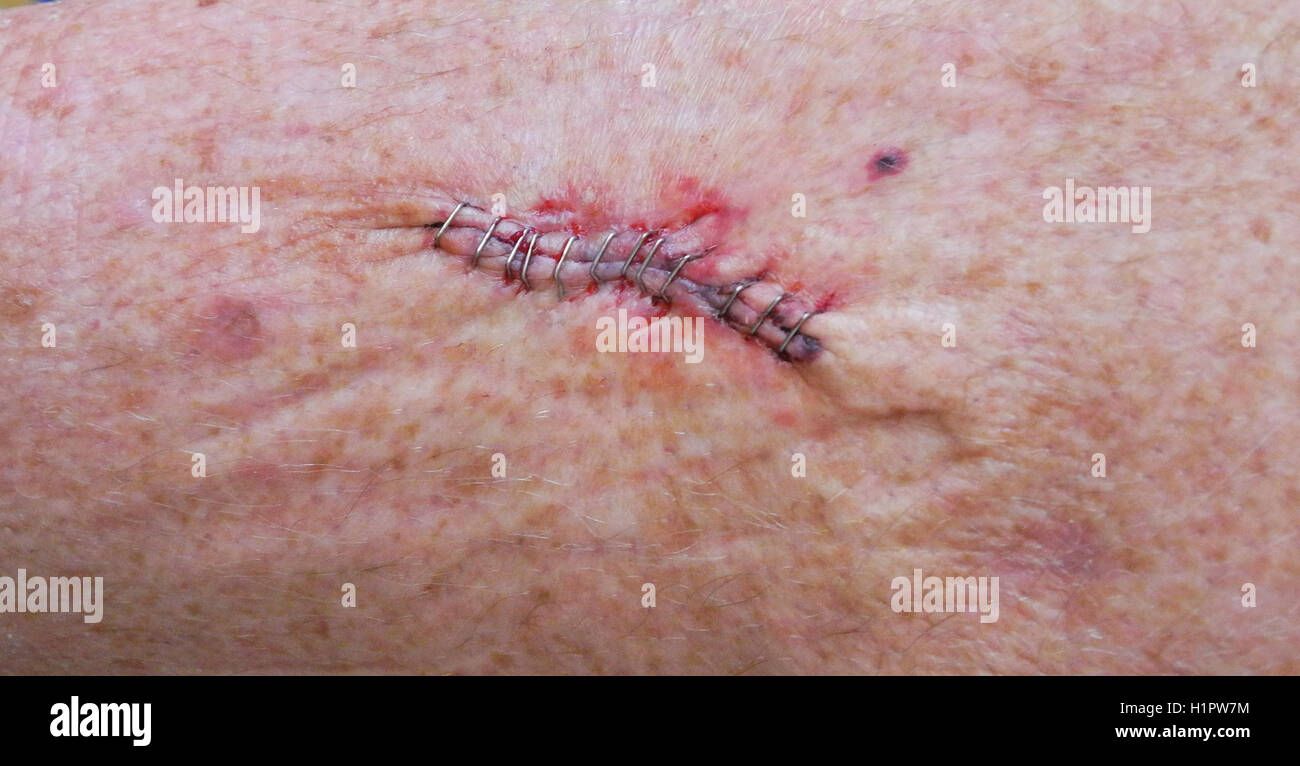 A dozen stainless steel medical staples were used in skin cancer surgery to close the wound after removing a squamous - Stock Image