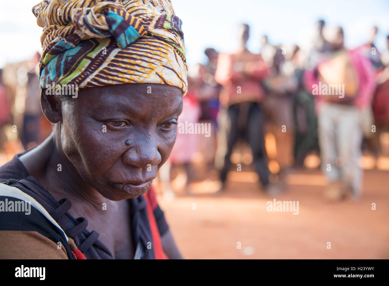 Namina village, Nampula Province, Mozambique, August 2015:  Maria Albino, 42, has been diagnosed with bilateral - Stock Image