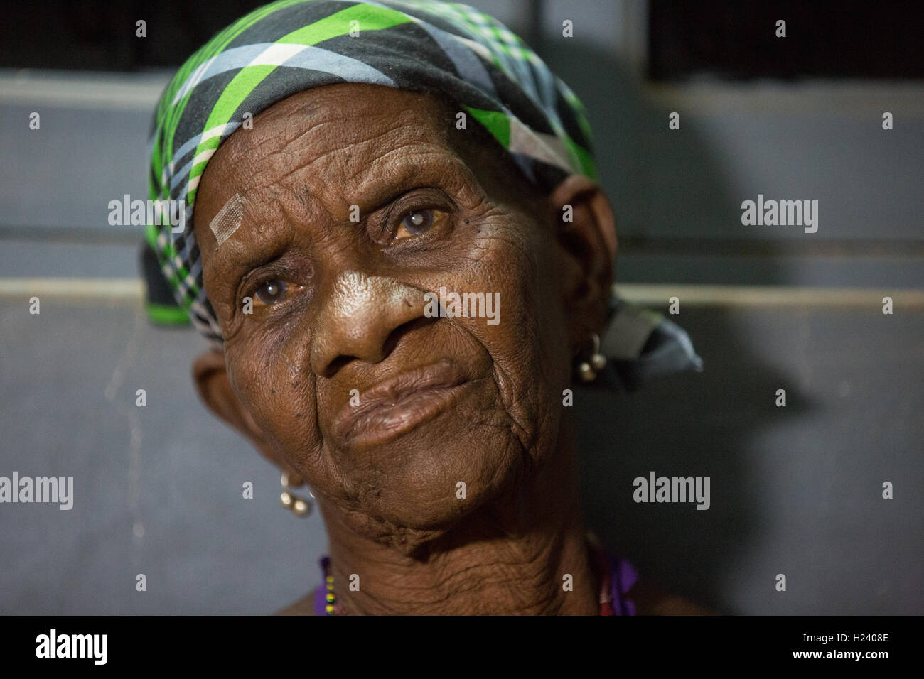 Ribue town, Nampula Province, Mozambique, August 2015: Maria Alihoca from Lalaua has bilateral cateracts. Photo - Stock Image