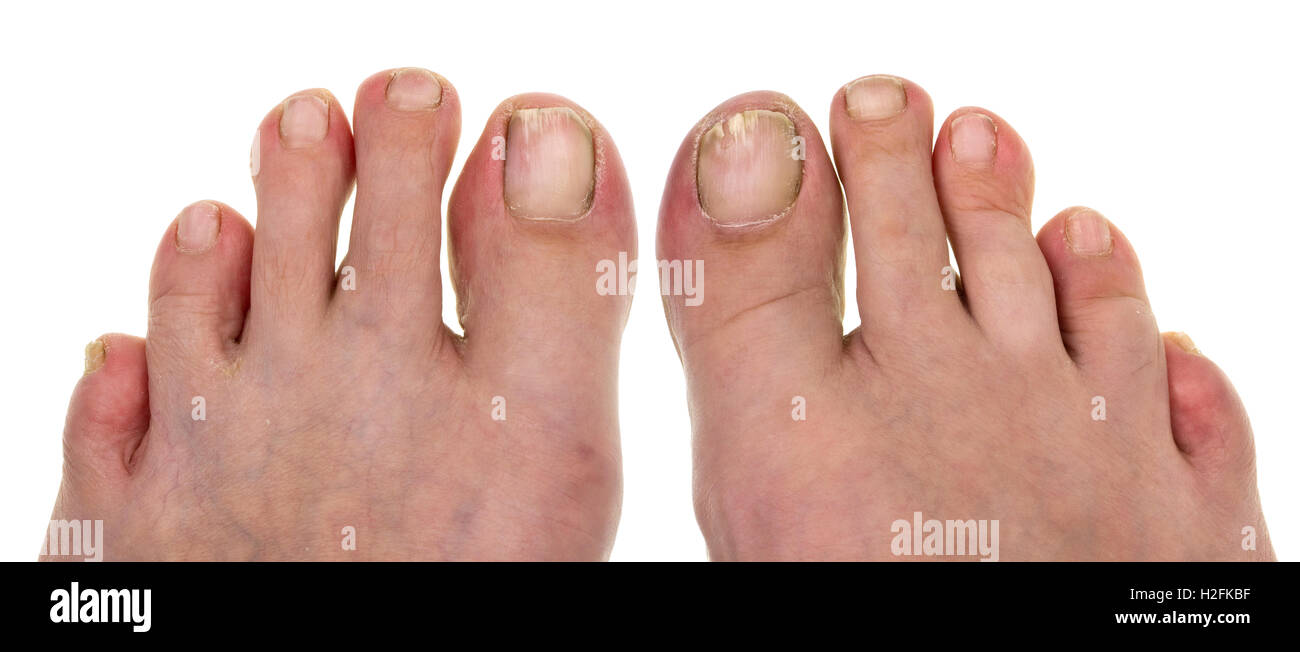 Ugly nails on toes at the elderly no name man.The man saws nails a ...