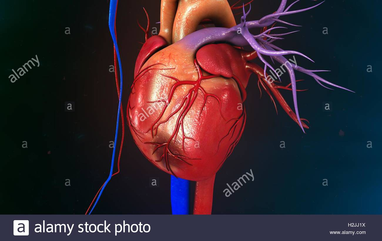 Myocardial Infarction Stock Photo: 122111190 - Alamy