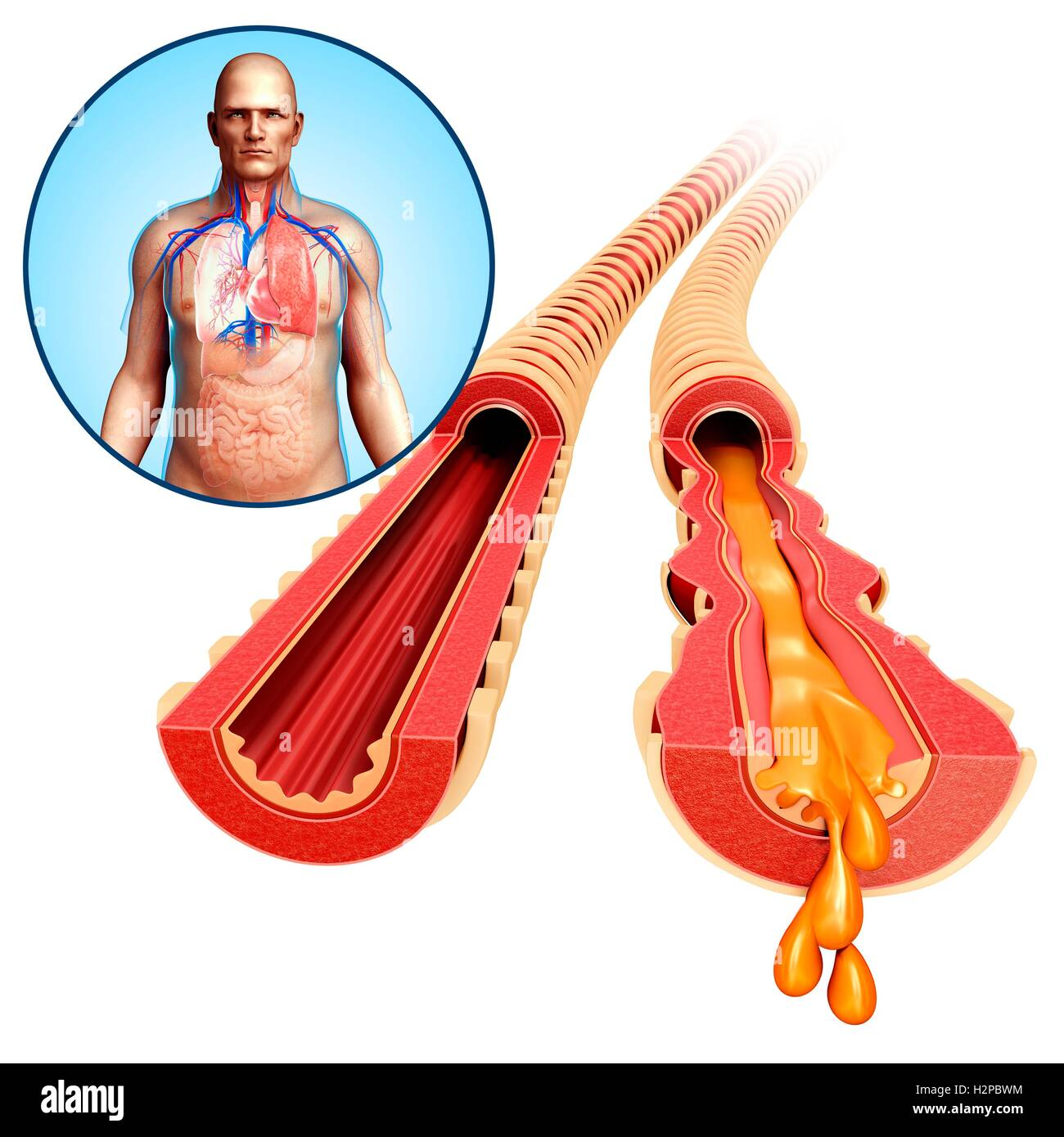 Illustration of a man's infected bronchi. - Stock Image